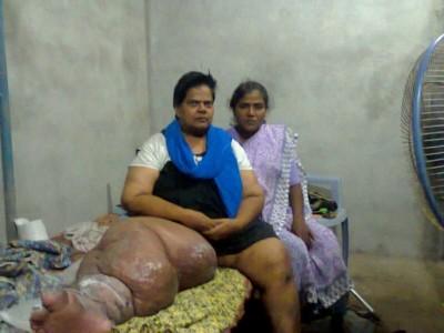 INDIA | BIHAR | Items for prayer
